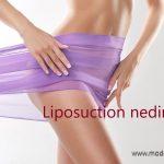 lipsuction nedir nelere dikkat edilmeli